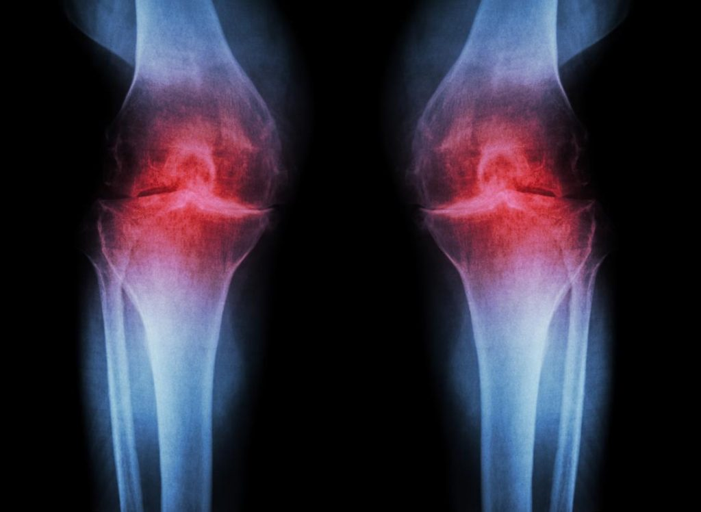 Tratamiento de la Artrosis El principal objetivo del tratamiento de la artrosis es mejorar el dolor y la incapacidad funcional sin provocar efectos secundarios