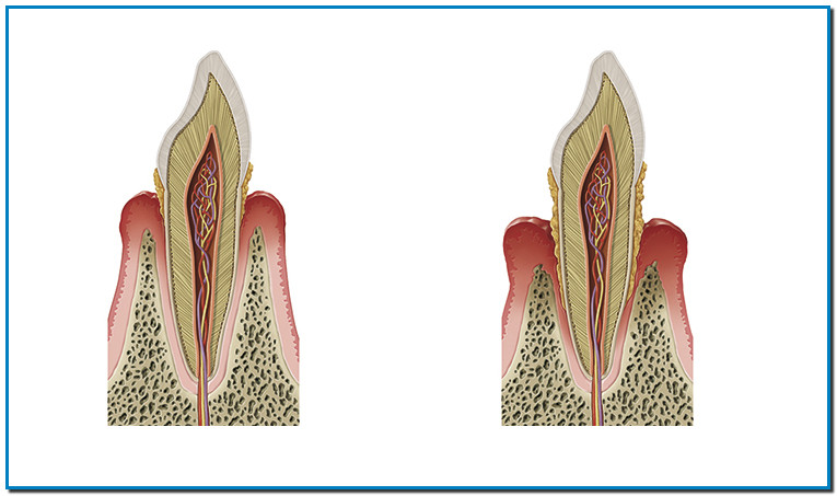 Se produce la aparición de las bolsas periodontales que son un aumento del hueco ó espacio entre la superficie del diente y la parte interna de la encía. El proceso destructivo se extiende hasta llegar a comprometer la estabilidad del diente. Debido a la pérdida de fijación, en fases finales los dientes aparecen separados y comienzan a moverse, con pérdida de su normal ubicación y, finalmente, se produce la caída irremediable de la pieza. El cepillado dental después de cada comida con un cepillo adecuado, pasta dentífrica especial para encías y el enjuague bucal, son fundamentales para la prevención y tratamiento de la gingivitis. En cuanto aparecen los primeros síntomas se recomienda acudir al dentista para que pueda valorar la situación de las encías y evitar que la salud de estas se vea más afectada.